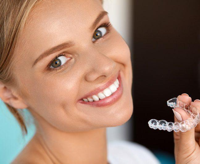 nakładki na zęby