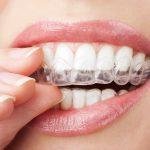 Niewidoczny aparat na zęby
